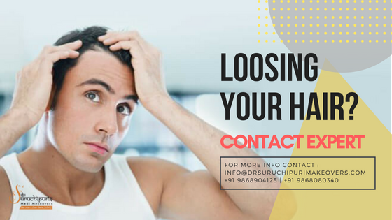 Baldness Treatment in Delhi
