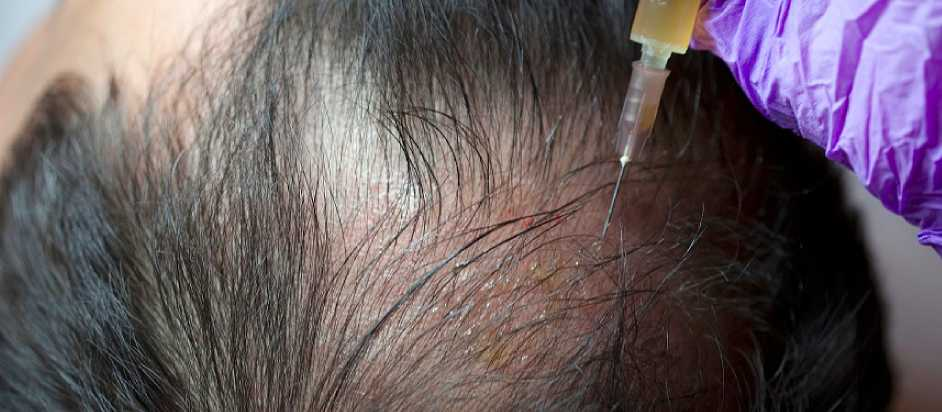 Cost of PRP Treatment for Hair Loss Delhi