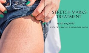 Stretch Marks Treatement