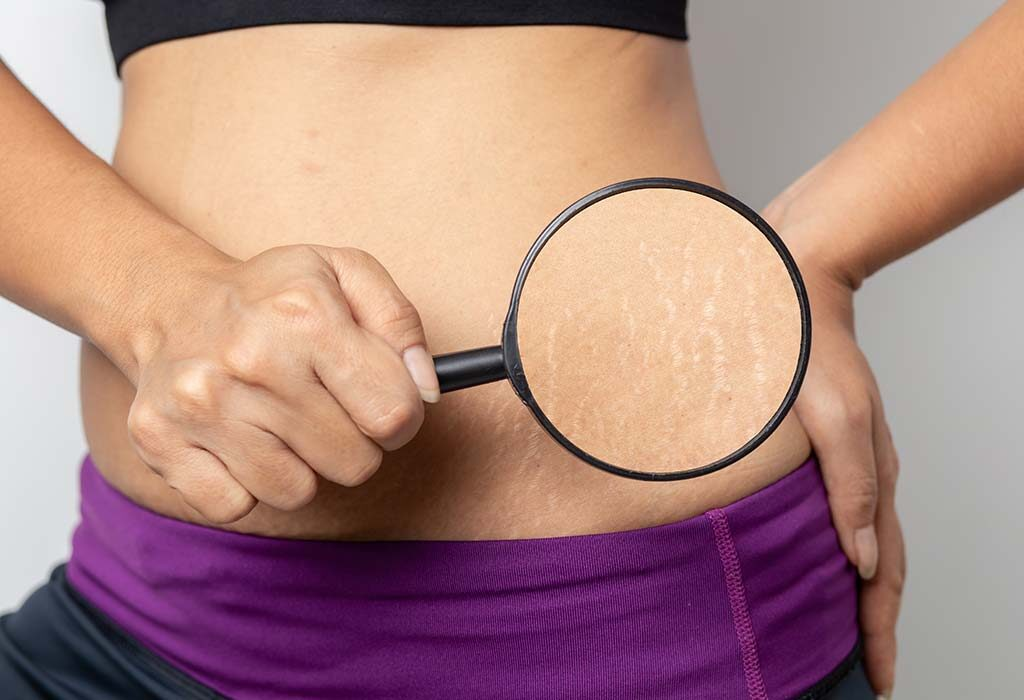 Stretch marks treatment in Delhi